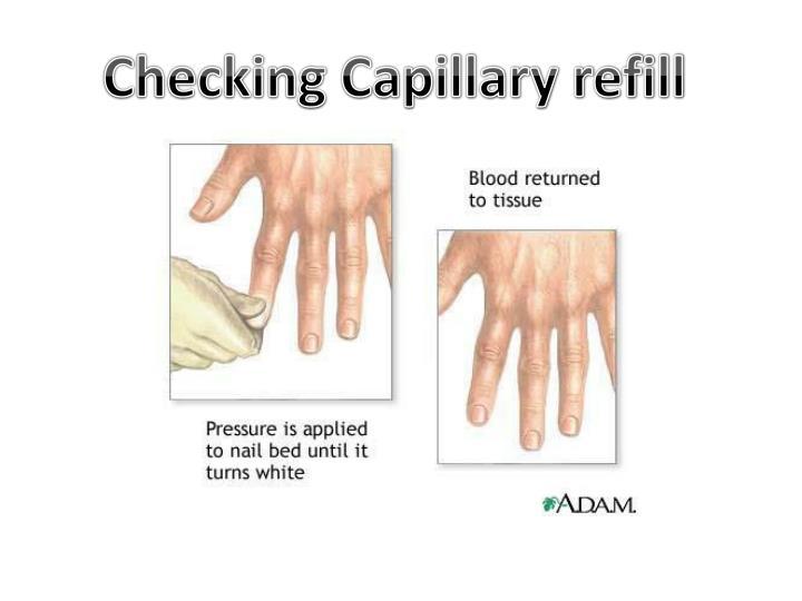 Checking Capillary refill