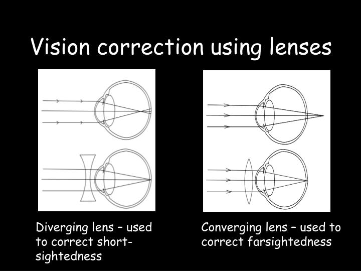 Vision correction using lenses