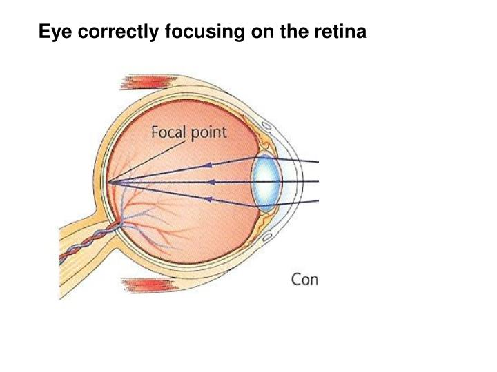Eye correctly focusing on the retina