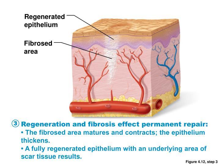 Regenerated