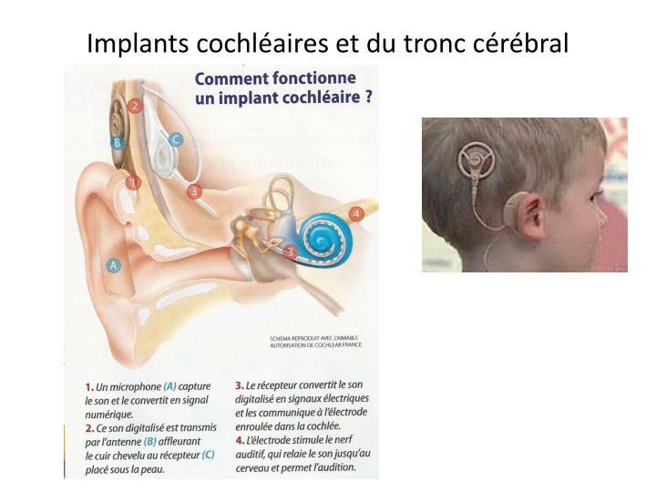 Implants cochléaires et du tronc cérébral