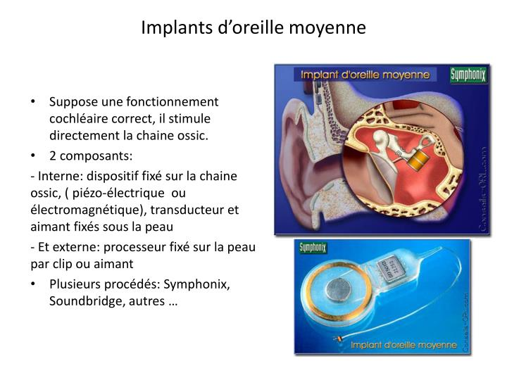 Implants d'oreille moyenne
