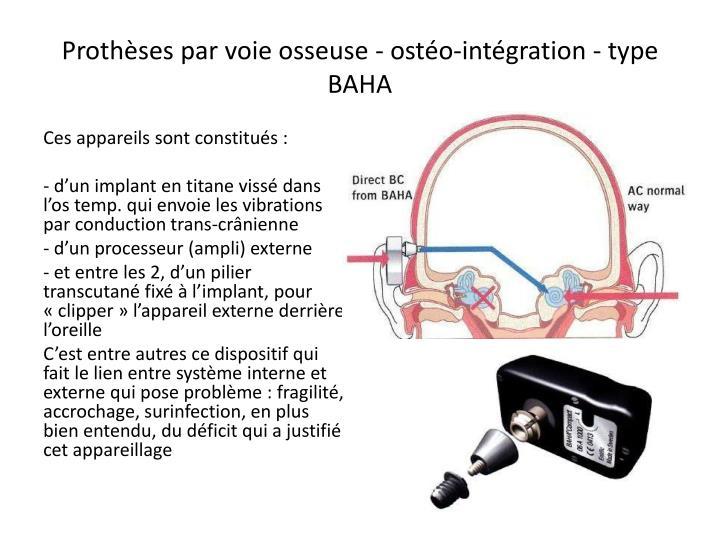 Prothèses par voie osseuse - ostéo-intégration - type BAHA
