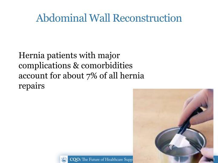 Abdominal Wall Reconstruction