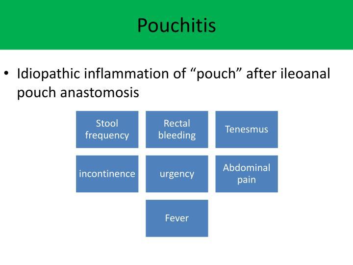 Pouchitis