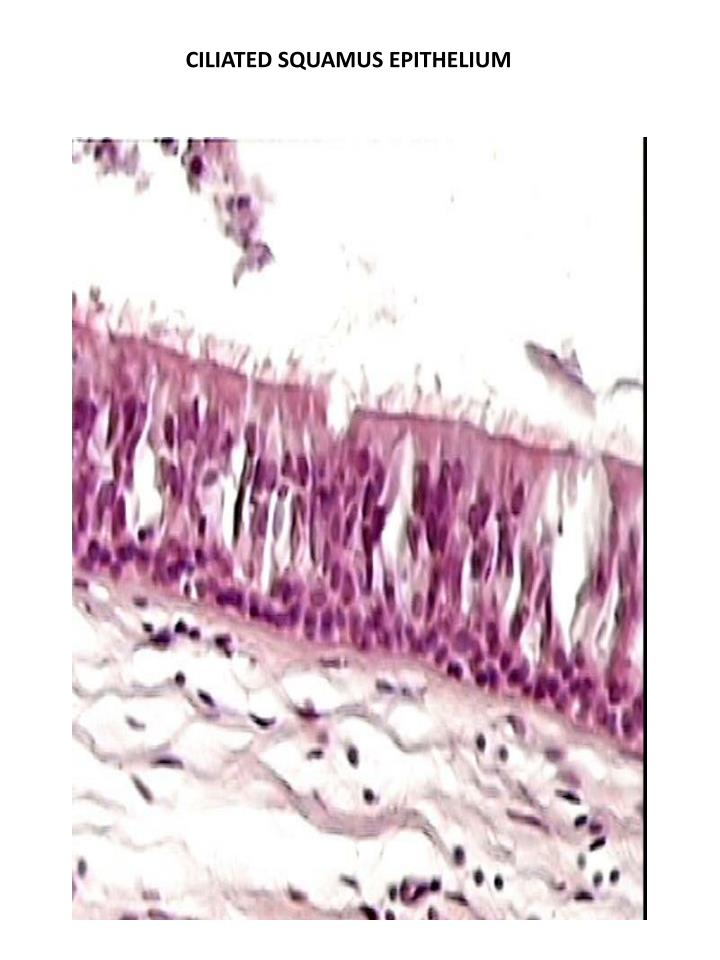 CILIATED SQUAMUS EPITHELIUM