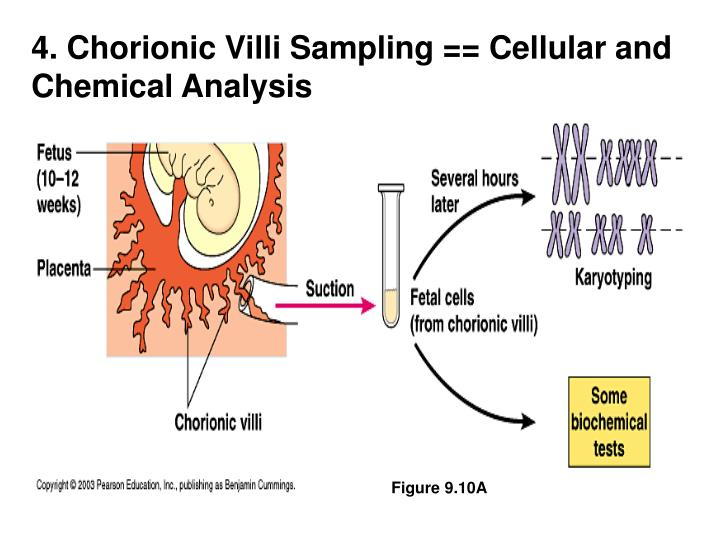 4. Chorionic Villi Sampling == Cellular and Chemical Analysis