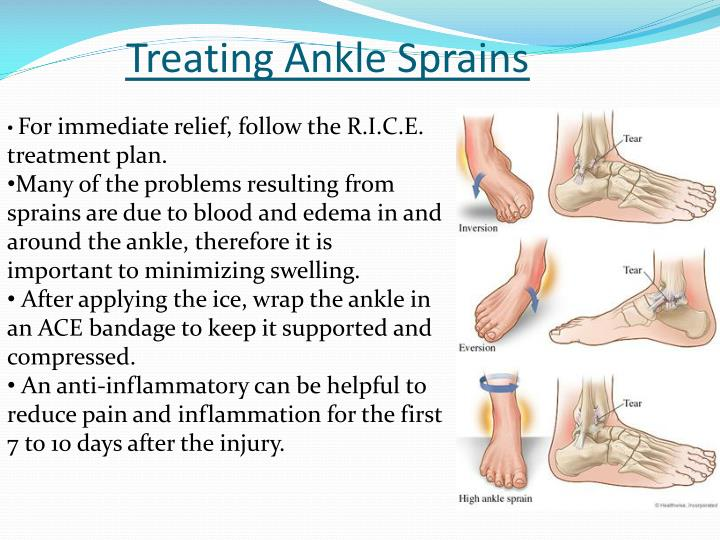 Treating Ankle Sprains