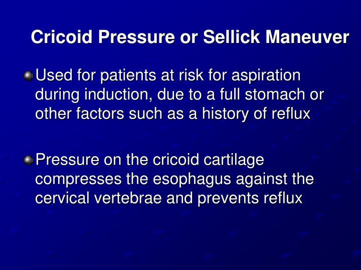 Cricoid Pressure or Sellick Maneuver