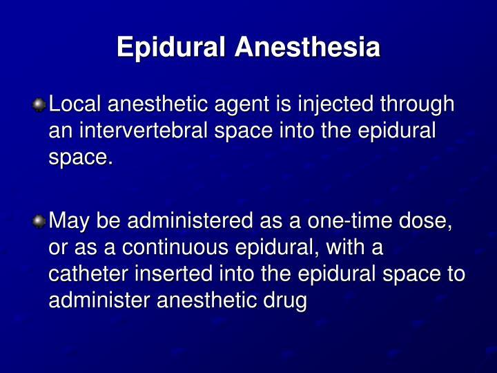 Epidural Anesthesia