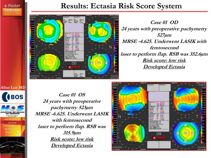 Results: Ectasia Risk Score System