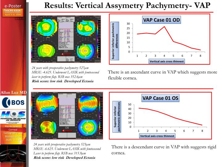 Results: Vertical Assymetry Pachymetry- VAP