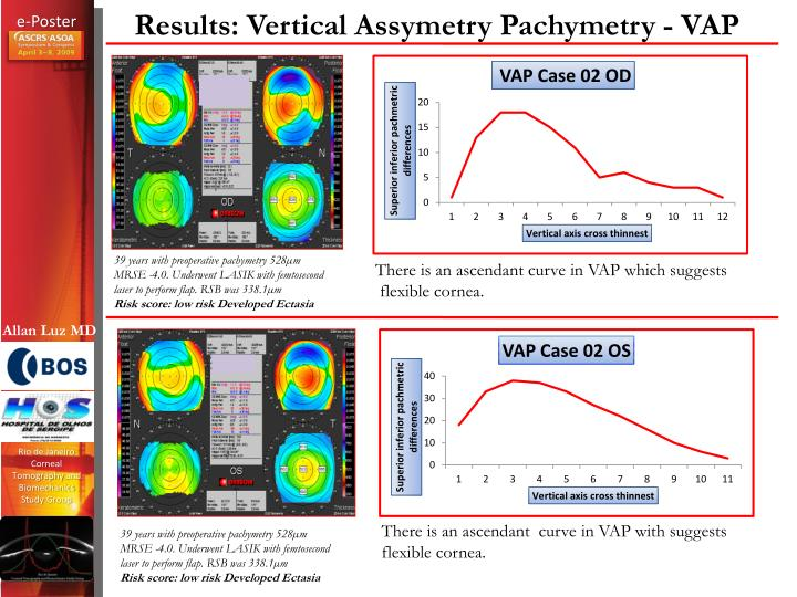 Results: Vertical Assymetry Pachymetry - VAP