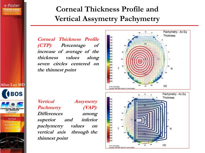 Corneal Thickness Profile and Vertical Assymetry Pachymetry