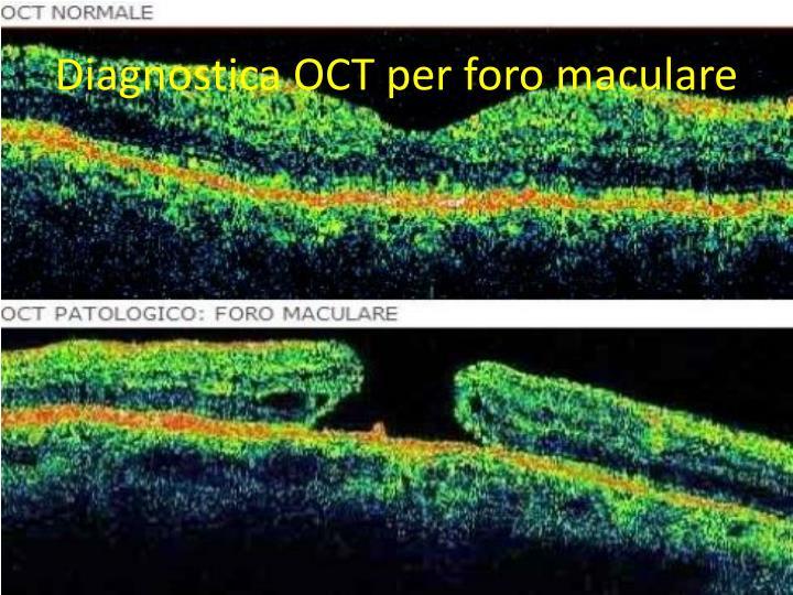 Diagnostica OCT per foro maculare