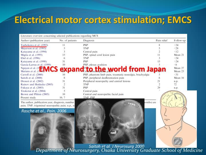 Electrical motor cortex stimulation