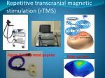 repetitive transcranial magnetic stimulation rtms
