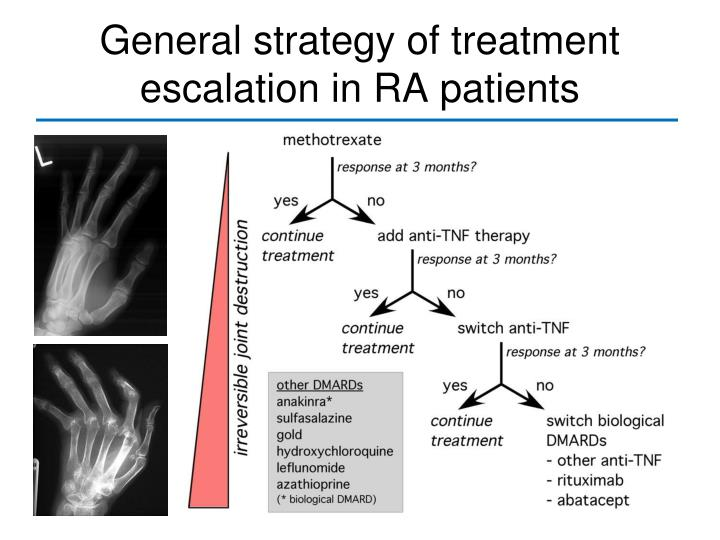 General strategy of treatment escalation in RA patients