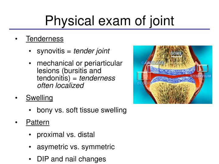 Physical exam of joint