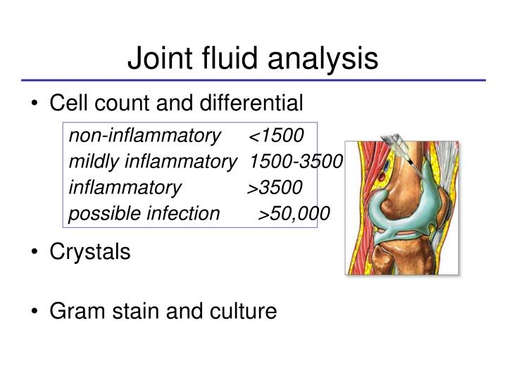 Joint fluid analysis