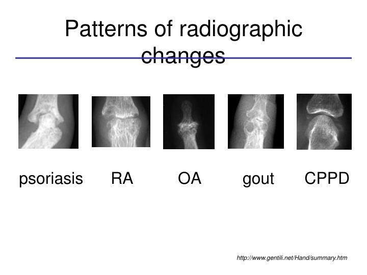 Patterns of radiographic changes