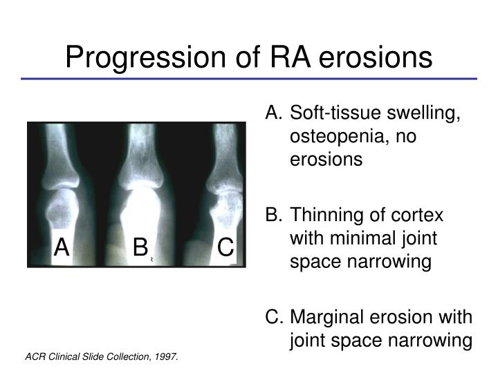 Progression of RA erosions