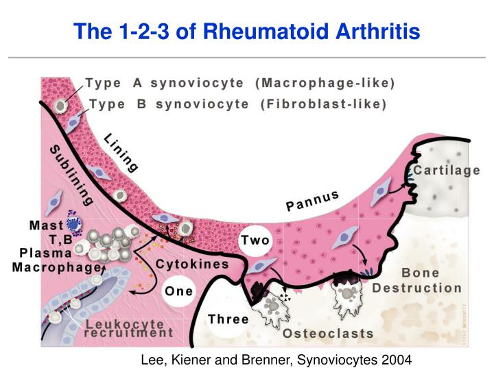 The 1-2-3 of Rheumatoid Arthritis