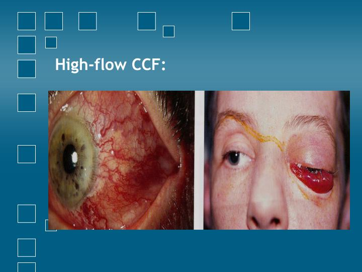 High-flow CCF: