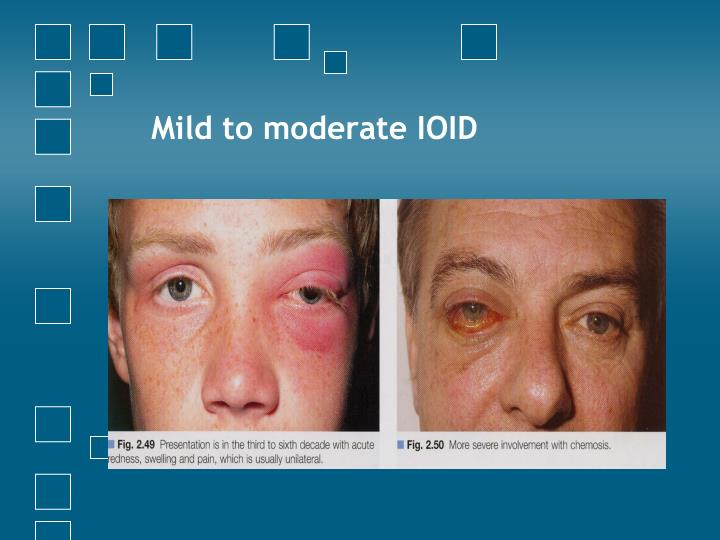 Mild to moderate IOID