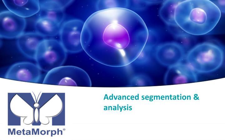Advanced segmentation & analysis