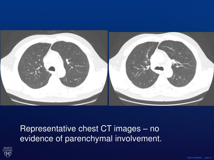Representative chest CT images – no evidence of parenchymal involvement.