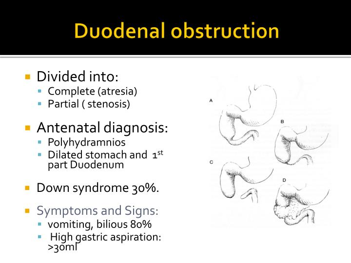 Duodenal obstruction