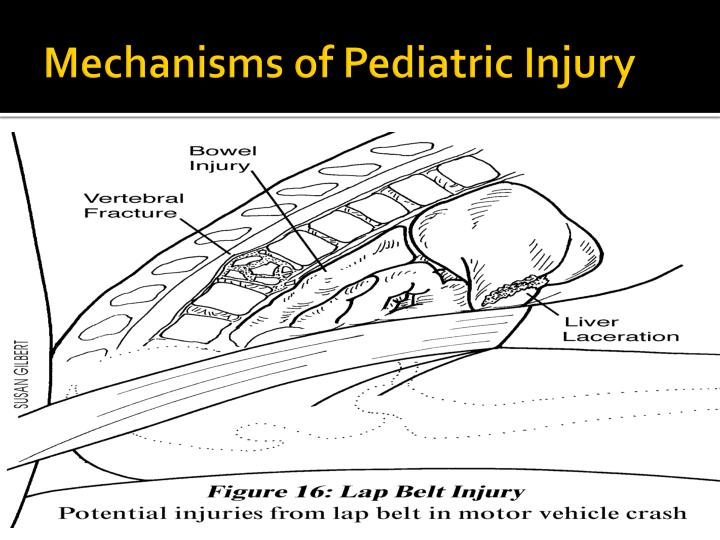 Mechanisms of Pediatric Injury
