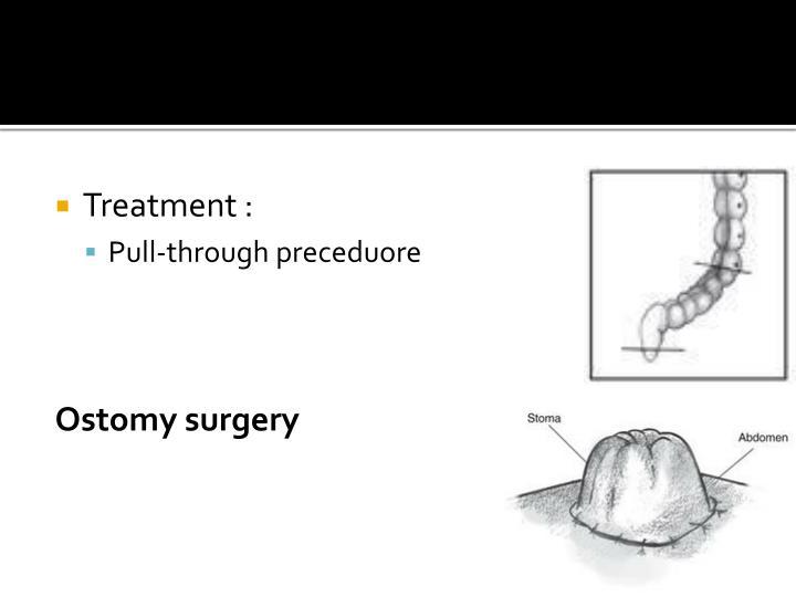 Treatment :