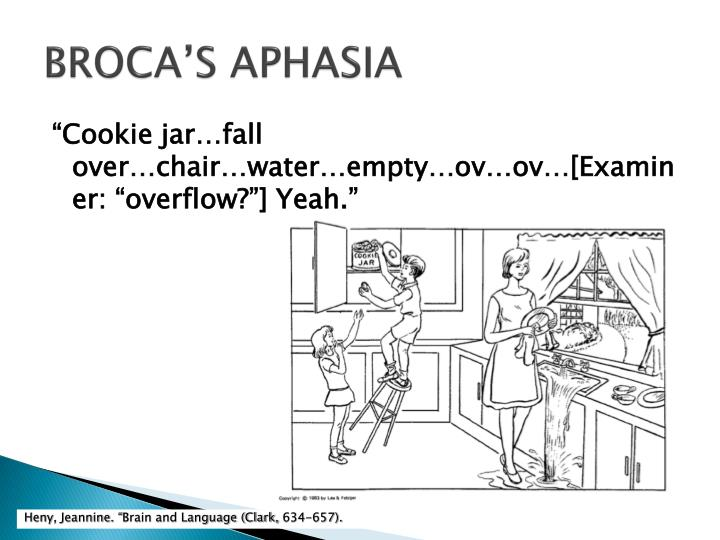 BROCA'S APHASIA