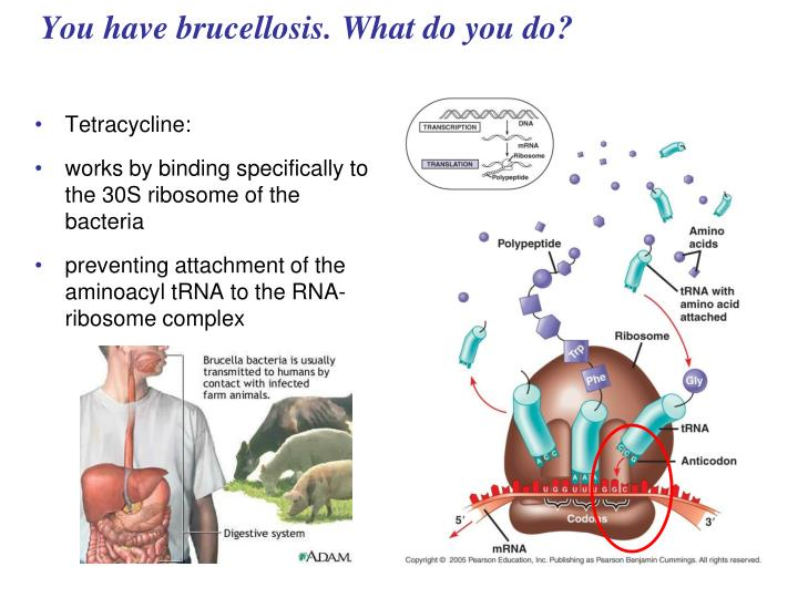 You have brucellosis. What do you do?