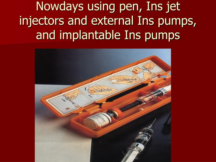 Nowdays using pen, Ins jet injectors and external Ins pumps, and implantable Ins pumps