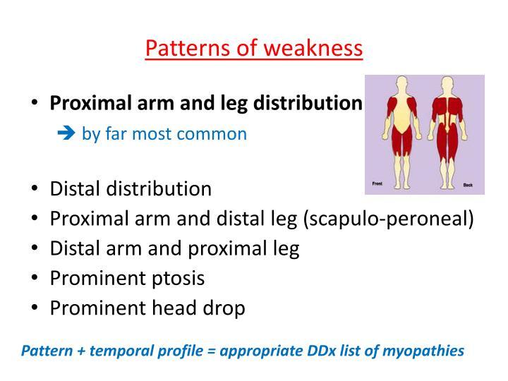 Patterns of weakness