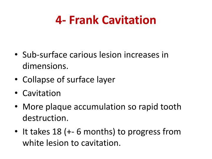 4- Frank