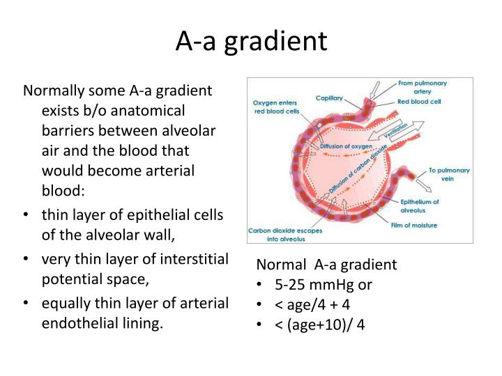 A-a gradient