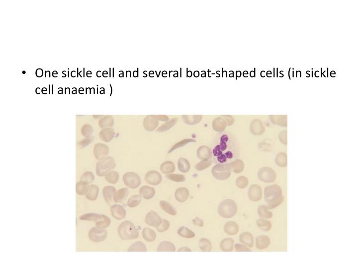 One sickle cell and several boat-shaped cells (in sickle cell