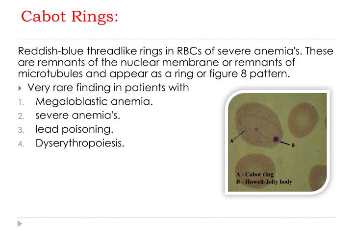 Cabot Rings:
