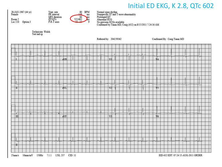 Initial ED EKG, K 2.8,