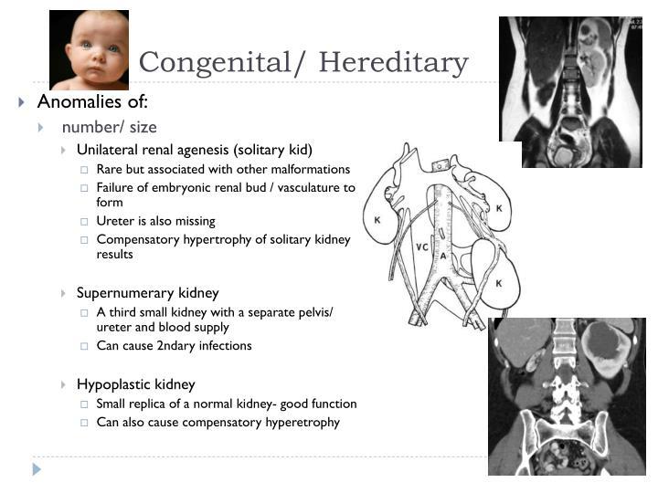 Congenital/ Hereditary