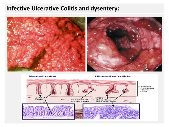 Infective Ulcerative Colitis and dysentery: