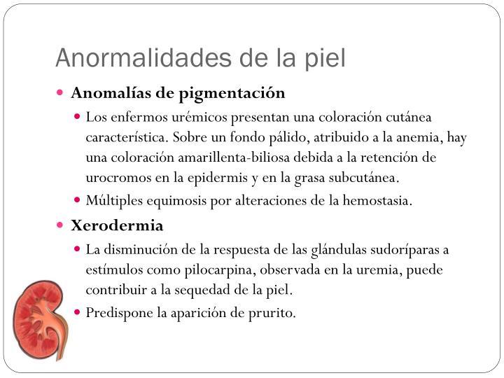 Anormalidades de la piel
