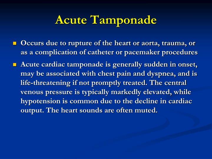 Acute Tamponade