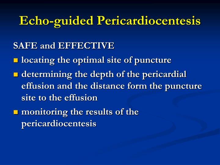 Echo-guided Pericardiocentesis