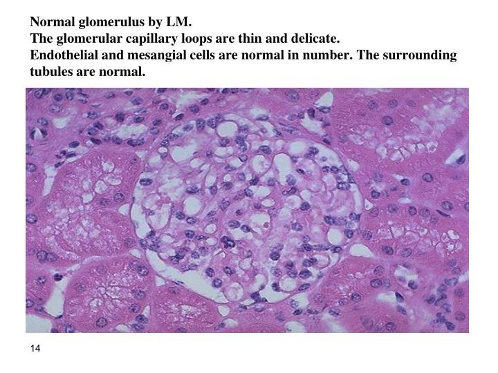 Normal glomerulus by LM.