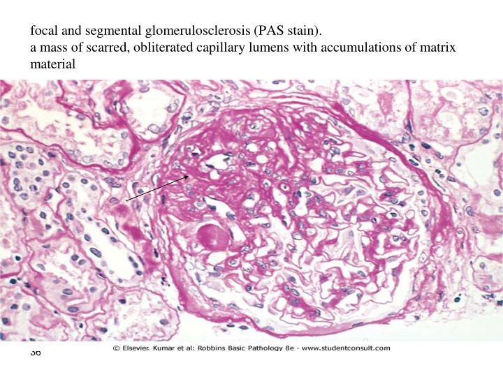 focal and segmental glomerulosclerosis (PAS stain).